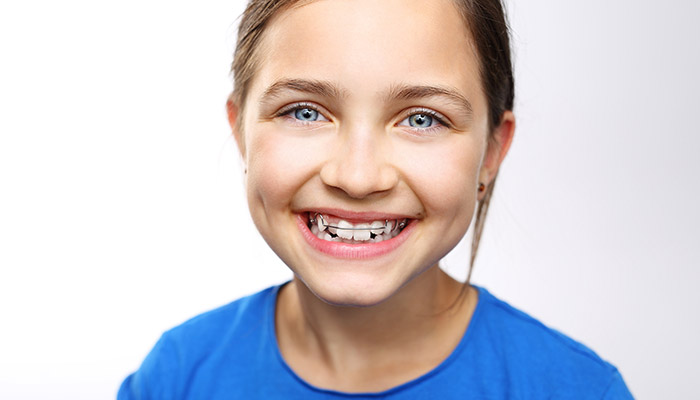 Smiling Young Girl Wearing Retainer